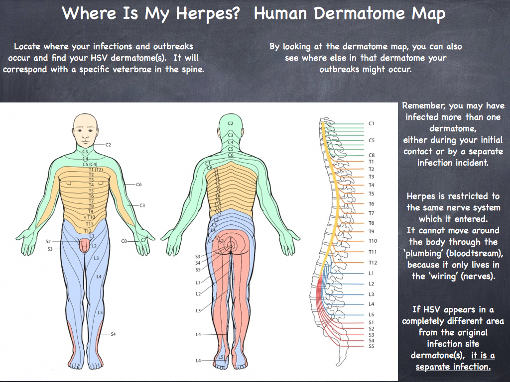 All About Hsv Human Dermatome Map